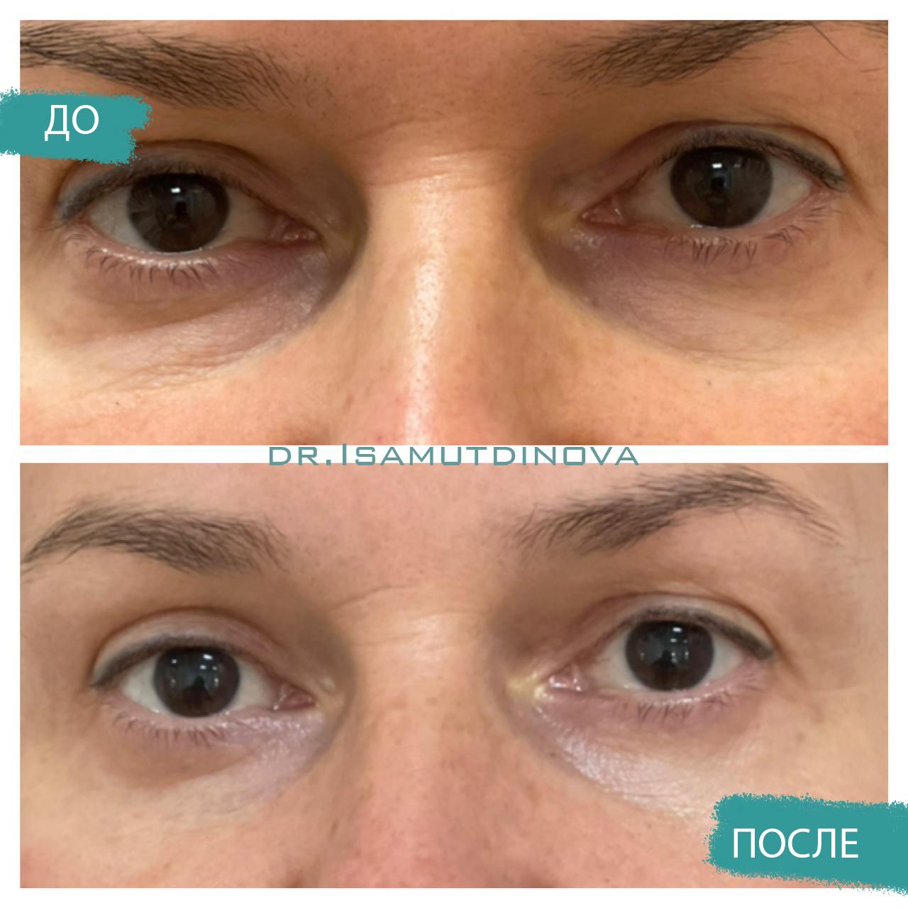 Нижняя блефаропластика фото до и после