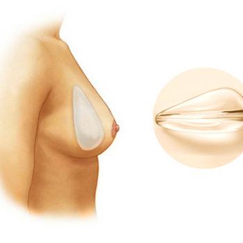 имплантанты анатомической формы