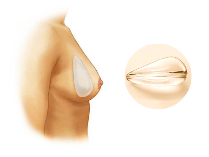 Всё об увеличении груди анатомическими имплантами