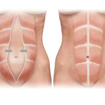 операция по устранению диастаза