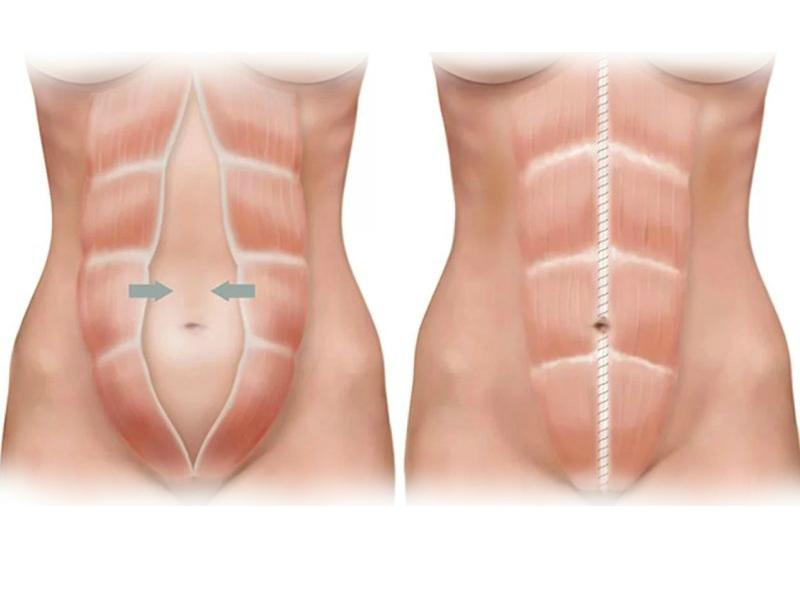 Лечение диастаза прямых мышц живота операцией