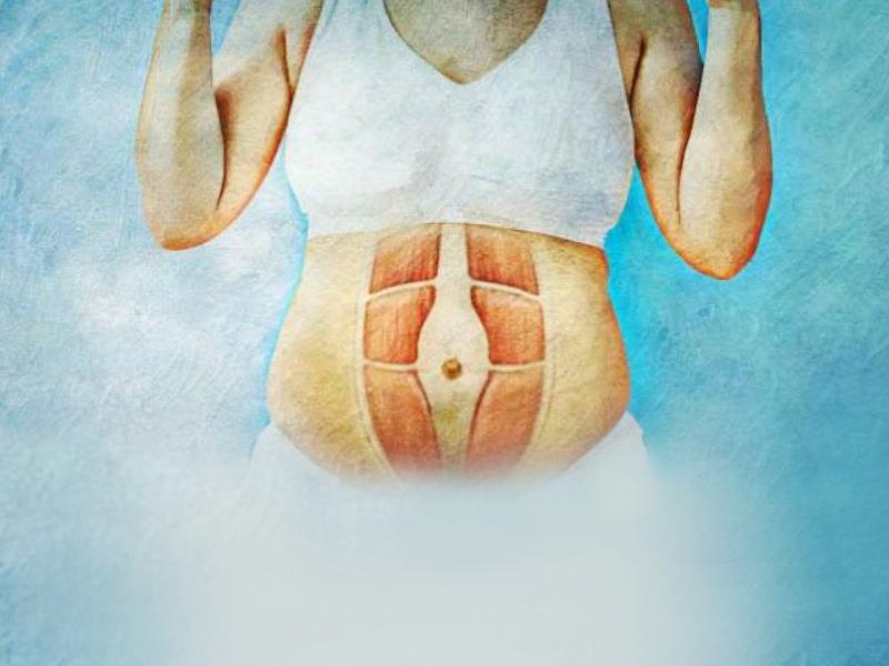 Диастаз мышц живота после беременности