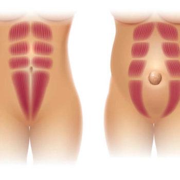 диастаз и грыжа