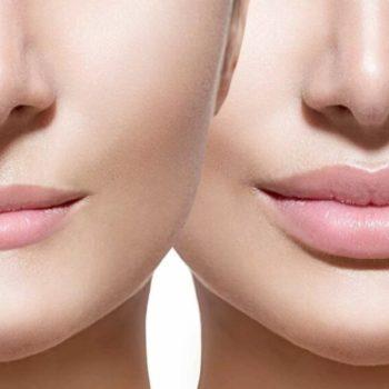 в какой клинике сделать пластику губ