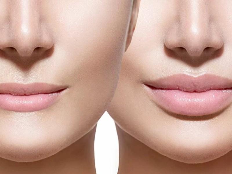 Где сделать пластику губ?