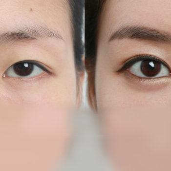 Разрез глаз - увеличение