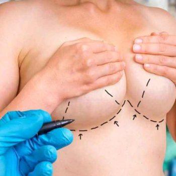 проведение операции по уменьшению груди