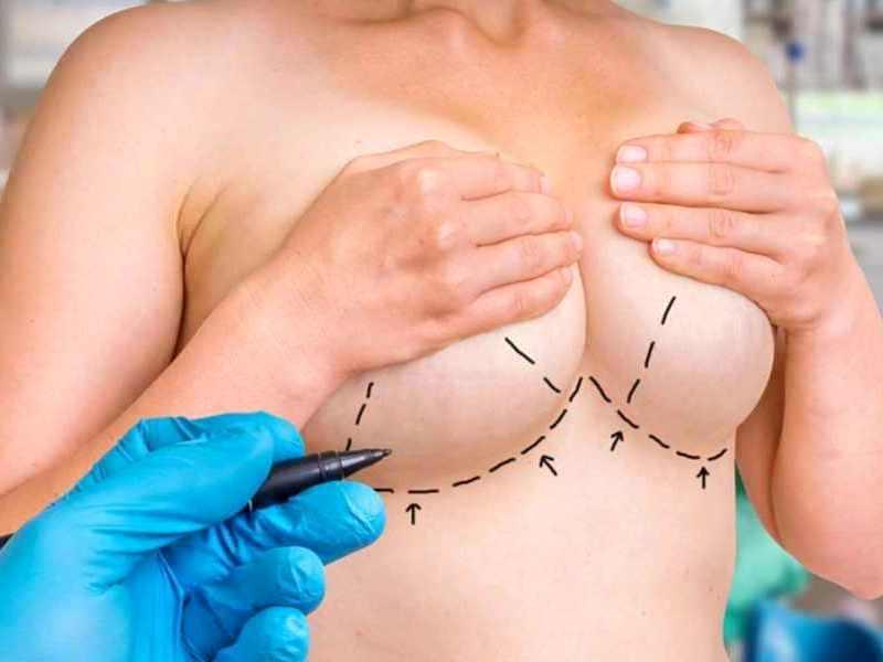 Как проходит уменьшение груди?