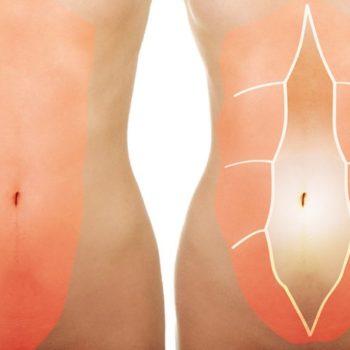 диастаз - лечить без операции