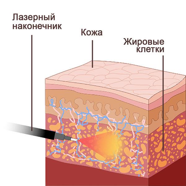 липосакция схема лазер
