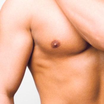 операция - уменьшение мужской груди