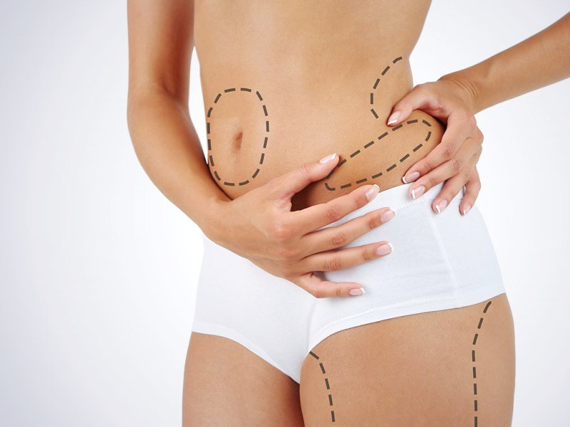 Остаются ли шрамы после липосакции?