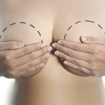 пластика для меньшего размера груди