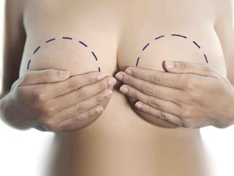 Пластическая хирургия по уменьшению груди