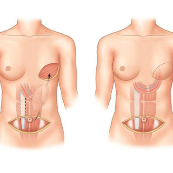 реконструктивная пластика после мастопексии