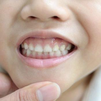 пластическая операция на верхней губе у ребенка