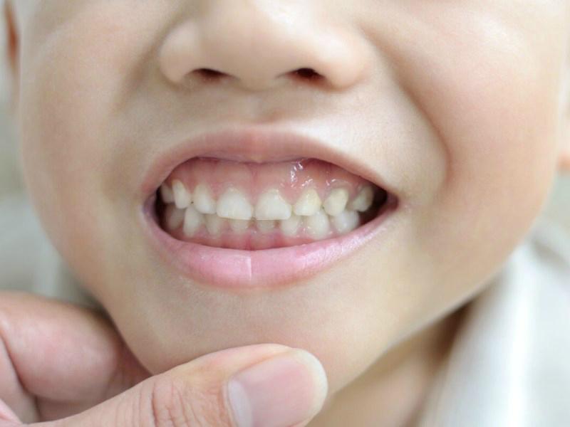 Пластика верхней губы у детей