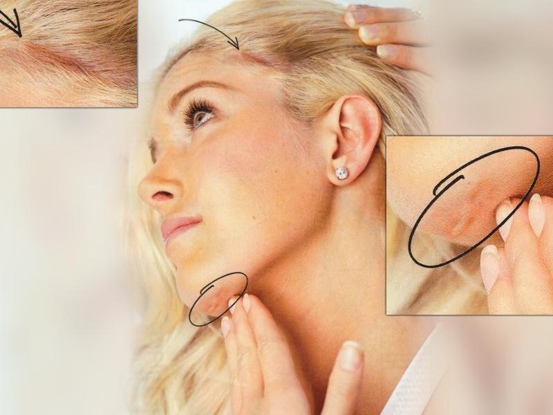 Шрамы и рубцы после пластики лица