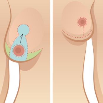 швы и рубцы после уменьшающей маммопластики