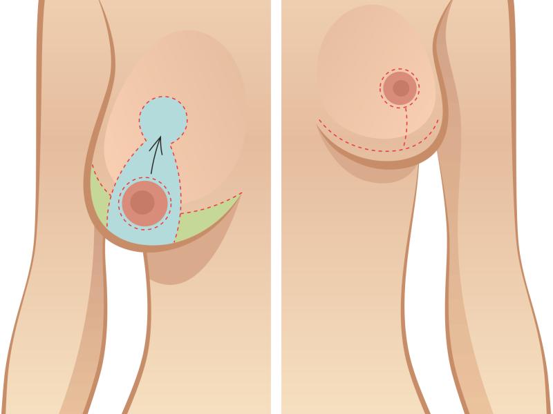 Шрамы и швы после уменьшения груди