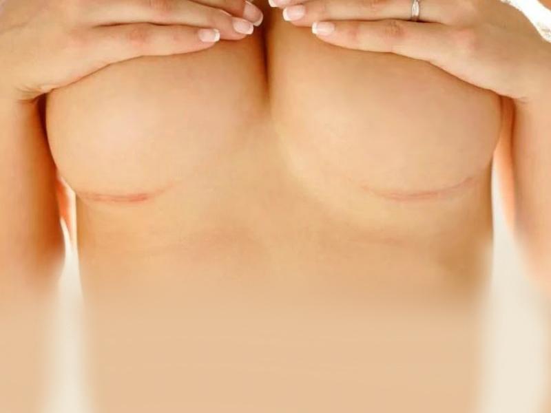 Швы и шрамы при увеличении груди