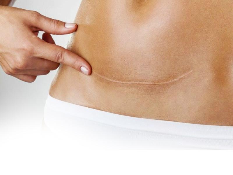 Шрамы и рубцы после абдоминопластики