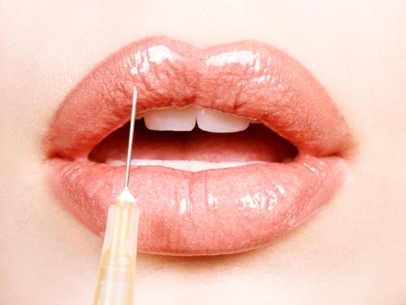 Сколько стоит пластика губ?