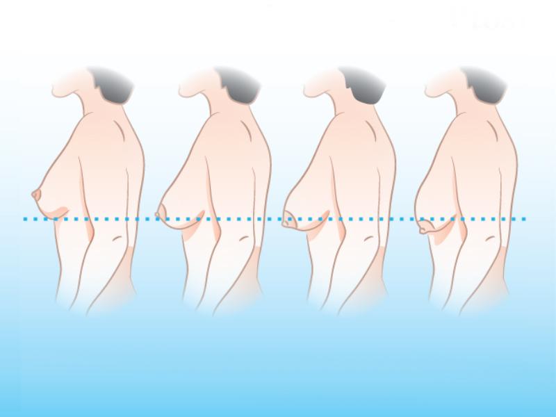 виды птоза груди