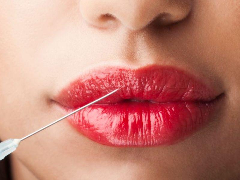 Техники контурной пластики губ