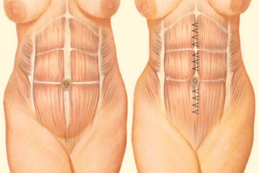 Устранение диастаза прямых мышц живота