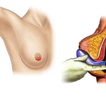 увеличение груди через ареолу соска