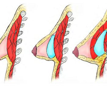 увеличение груди тубулярной формы